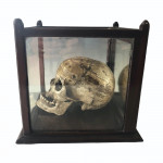 A human skull with fitted mahogany case, circa 1800.